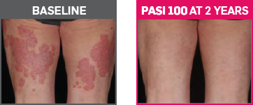 Baseline and PASI 100 at 2 Years